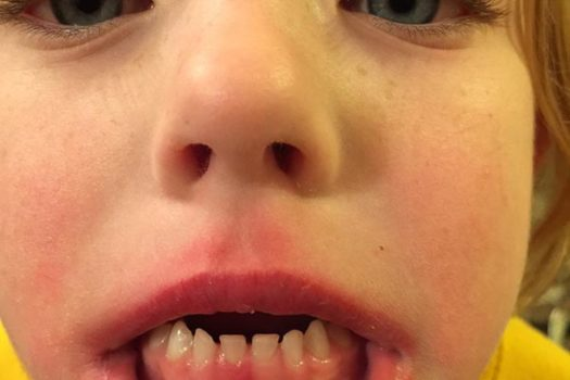 Losing Your First Baby Tooth